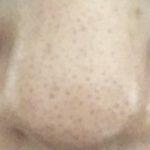 【今年こそ苺鼻にサヨナラ!!】小鼻の黒ずみと本気で戦って見た。